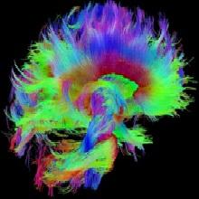 Navigator Neurons Play Critical Role In Sense Of Smell >> Home - Australasian Neuroscience Society Inc